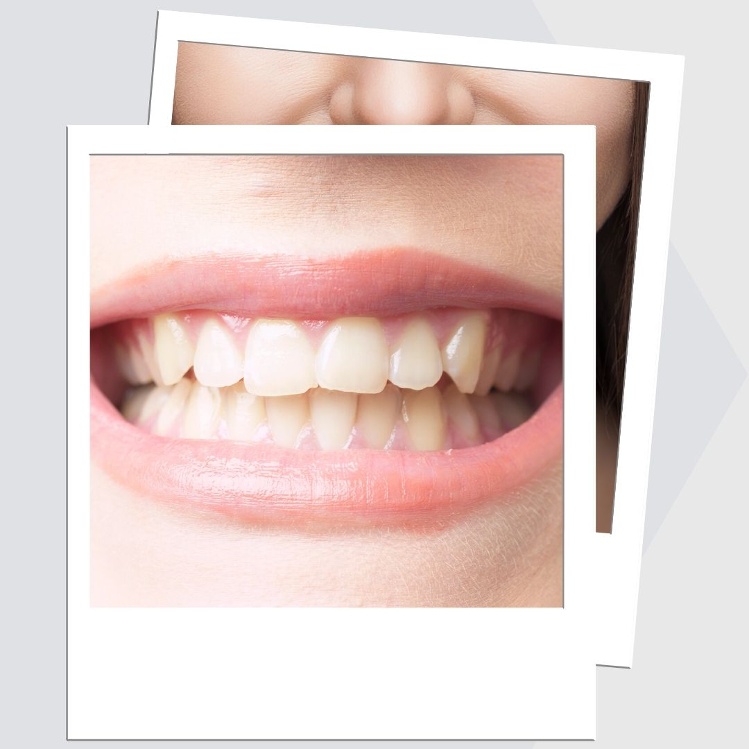 Are You Ready To See How We Can Transform Your Smile?